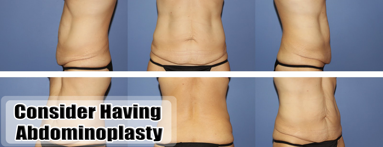 Why You Need to Consider Having Abdominoplasty