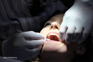 Infection Prevention After Dental Implant Surgery