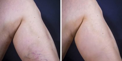 Overview Of Treatment Options For Unsightly And Uncomfortable Varicose Veins