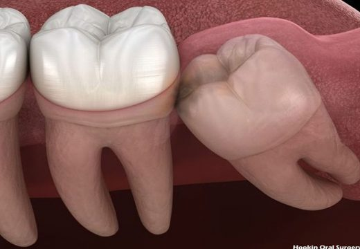 Human Dental Structure and the Wisdom Teeth Removal